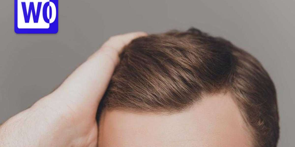 5 Secret That Everyone Should Know about Textured hair transplant